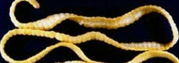 parazita szalagféreg
