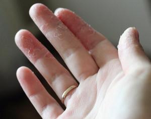 tør hud mellem fingrene
